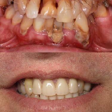 Open Chestnut Family Dental Gallery Image 6