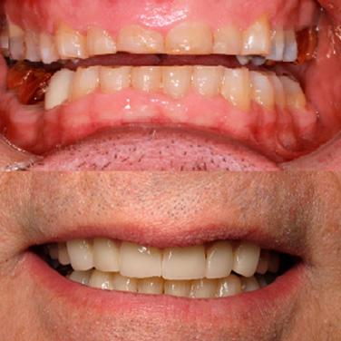 Open Chestnut Family Dental Gallery Image 9